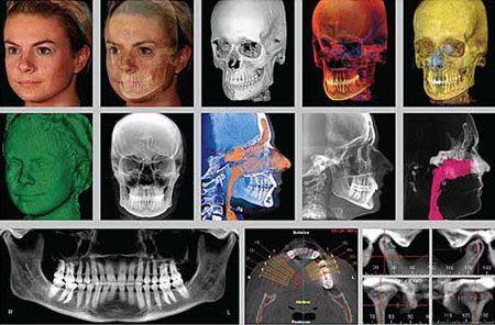 El Sistema Dolphin 3D d'estudi d'ortodòncia ens ajuda a escollir el tractament més adient en cada cas