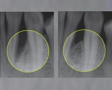 Emdogain fa possible i predictible la regene-ració d'os perdut com a conseqüència d'una periodontitis, ajudant a conservar les dents