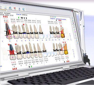 Els sistemes digitals d'estudi de les genives per ordinador com la Sonda Florida (Florida Probe) o el Voice Works ens resulten de gran ajuda per poder diagnosticar i controlar la seva evo-lució i la resposta als tractaments