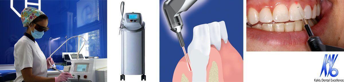 El làser dental Kavo està dissenyat per tractar teixits tous i durs. Té moltes aplicacions en odontologia