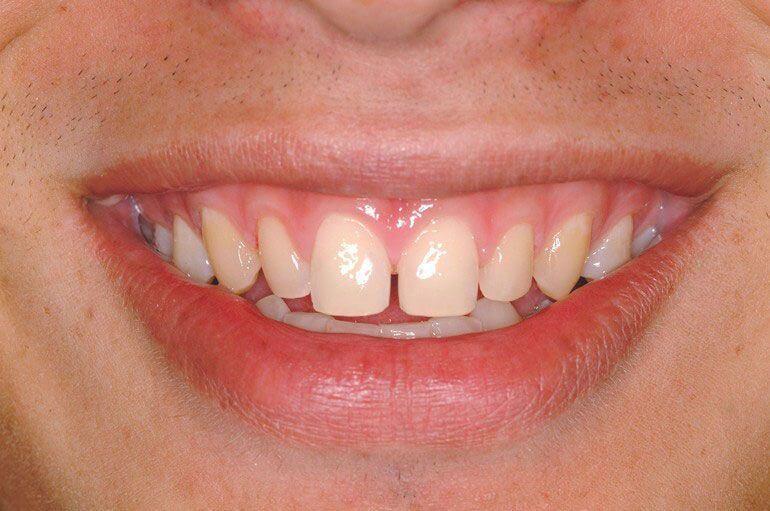 Abans del tractament de carilles de ceràmica o porcellana utilitzant la tecnologia Lumineers