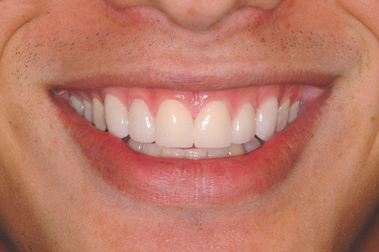Després del tractament de carilles de ceràmica o porcellana utilitzant la tecnologia Lumineers