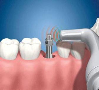 El sistema Ostell permet controlar l'estabilitat i l'evolució dels implants dentals