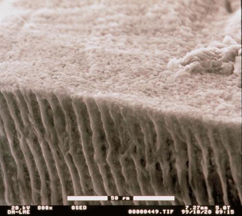 Fotografia dels túbuls de la dentina a les dents (vista al microscopi electrònic (ESEM). Investigació privada de Clínica Dental Padrós