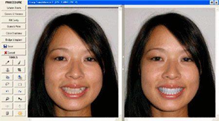 Estètica dental. La simulació per ordinador d'un canvi en el somriure permet veure com millora l'aspecte general de la cara