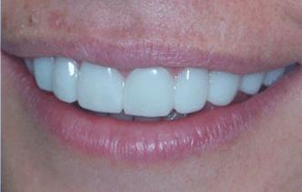 Snap on smile és un tractament innocu i no invasiu d'estètica dental. Consisteix en unes fèrules estèti-ques de treure i posar. Clínica Dental Padrós és un centre certificat per l'aplicació de Snap on smile a Barcelona