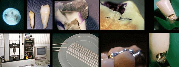 Aquestes són una mostra d'algunes de les imatges d'una investigació realitzada en clínica dental Padrós amb un microscopi electrònic i que va ser publicat en una de les revistes científiques nacionals i estrangeres