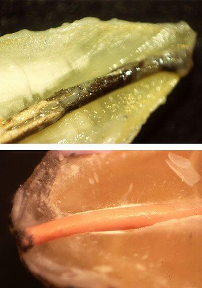 Imatges de la investigació duta a terme per Clínica Dental Padrós sobre el segellat dels conductes en endodòncia