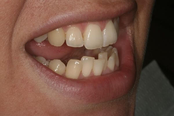 Analitzant mostres de casos pràctics del tractament d'ortodòncia ràpida a Barcelona Inman Aligner. A la imatge s'observa la posició de les dents en un dels pacients tractats a la nostra clínica dental abans d'haver-se sotmès al tractament.