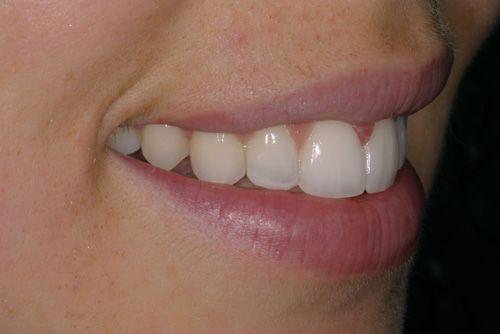 Analitzant mostres de casos pràctics del tractament d'ortodòncia ràpida a Barcelona Inman Aligner. A la imatge s'observa la posició de les dents en un dels pacients tractats a la nostra clínica dental després d'haver-se sotmès al tractament.