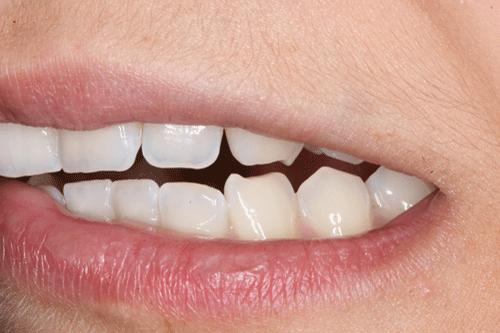 El bruxisme és el tercer trastorn del son més comú. Un de cada quatre persones el pateixen. El rechinamiento o apretament de les dents provoca dolor mandibular, mal de cap, etc.