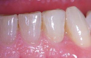 Exemple d'un cas real tractat a la Clínica Dental Padrós després de procedir al tractament d'implants dentals. Com es pot observar s'aconsegueix un efecte totalment net i natural.