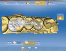 Imatges d'un cas real en clínica dental Padrós amb el sistema CEREC CAD-CAM. Amb l'ús del programari de disseny podem millorar el disseny i creació de restauracions dentals, especialment pròtesis dentals incloent corones, caretes, ponts, implants i aparells d'ortodòncia