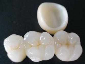 Amb l'ús del programari de disseny CAD-CAM podem millorar el disseny i creació de restauracions dentals, especialment pròtesis dentals incloent corones, caretes, ponts, implants i aparells d'ortodòncia