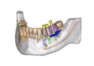 El nostre sistema de radiologia 3D Simplant ens permet programar els casos de tractaments d'implants dentals amb gran precisió. Podem realitzar cirurgies virtuals, preparar plantilles, conèixer la densitat de l'os en cada punt, etc.