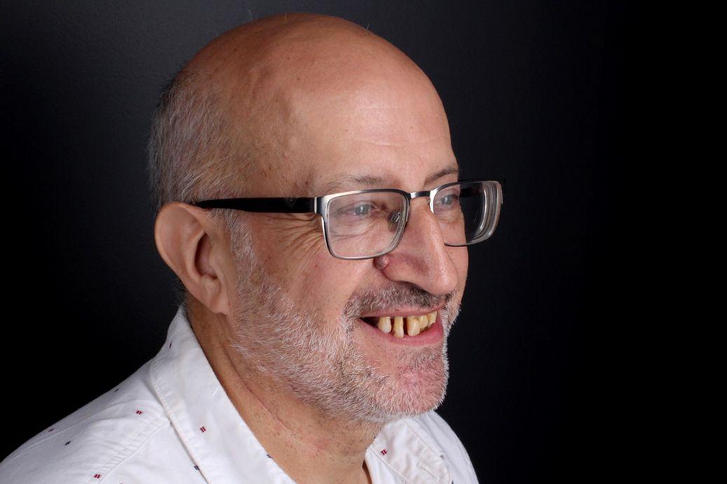 Abans del tractament de pròtesis dentals