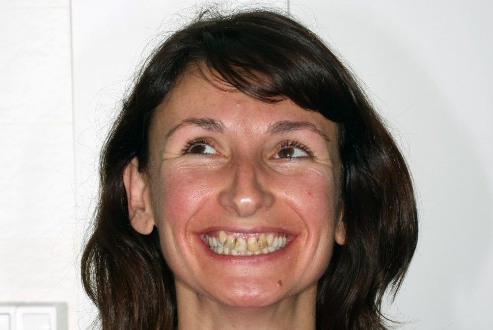 Abans del tractament d'ortodoncia