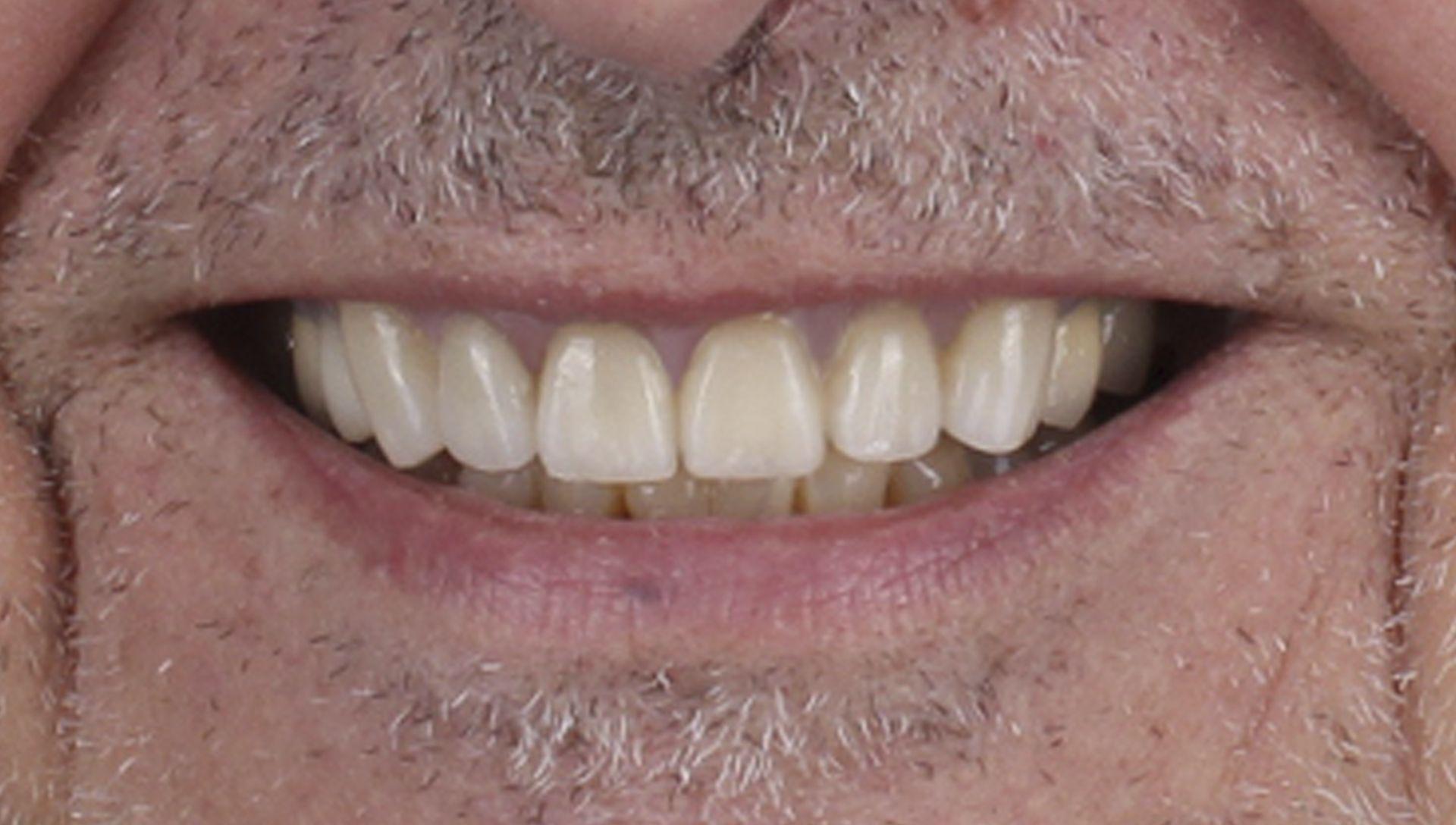 Després del tractament de pròtesis dentals