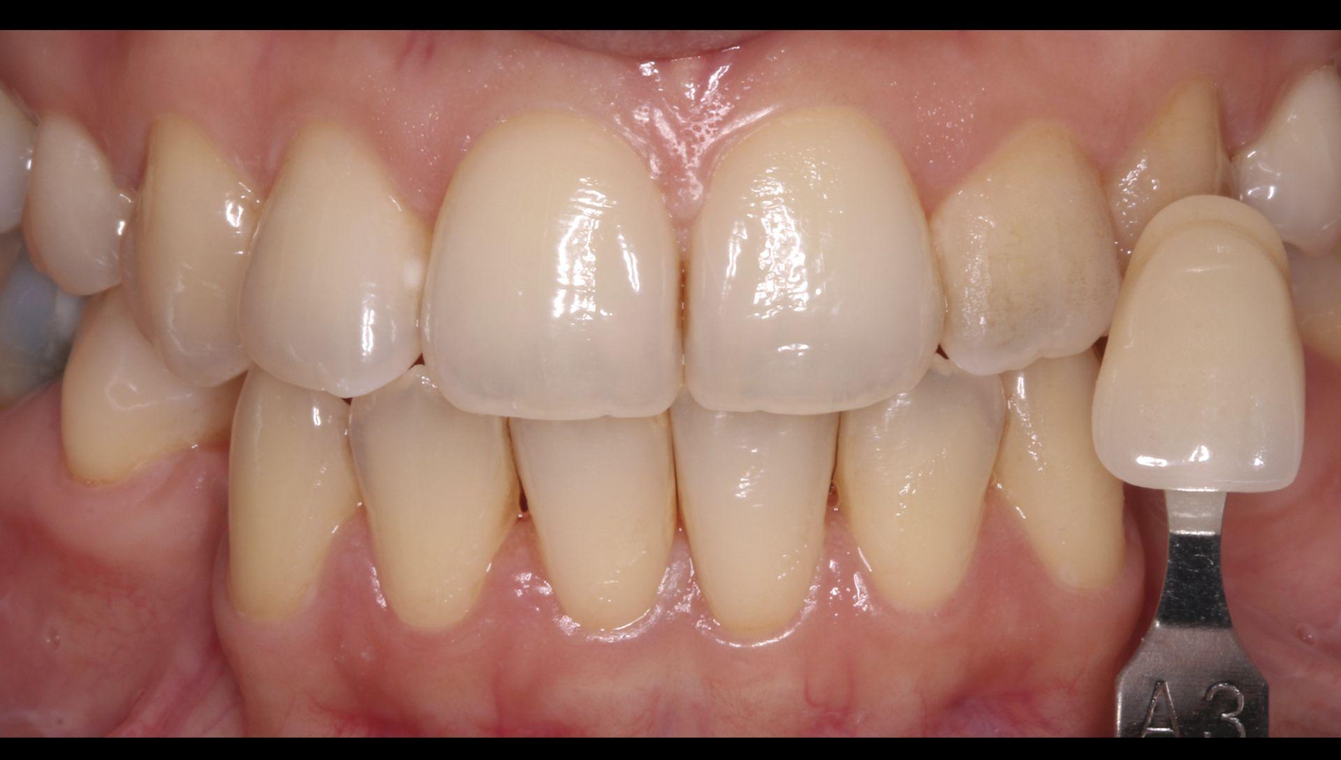 Abans del tractament de blanquejament dental