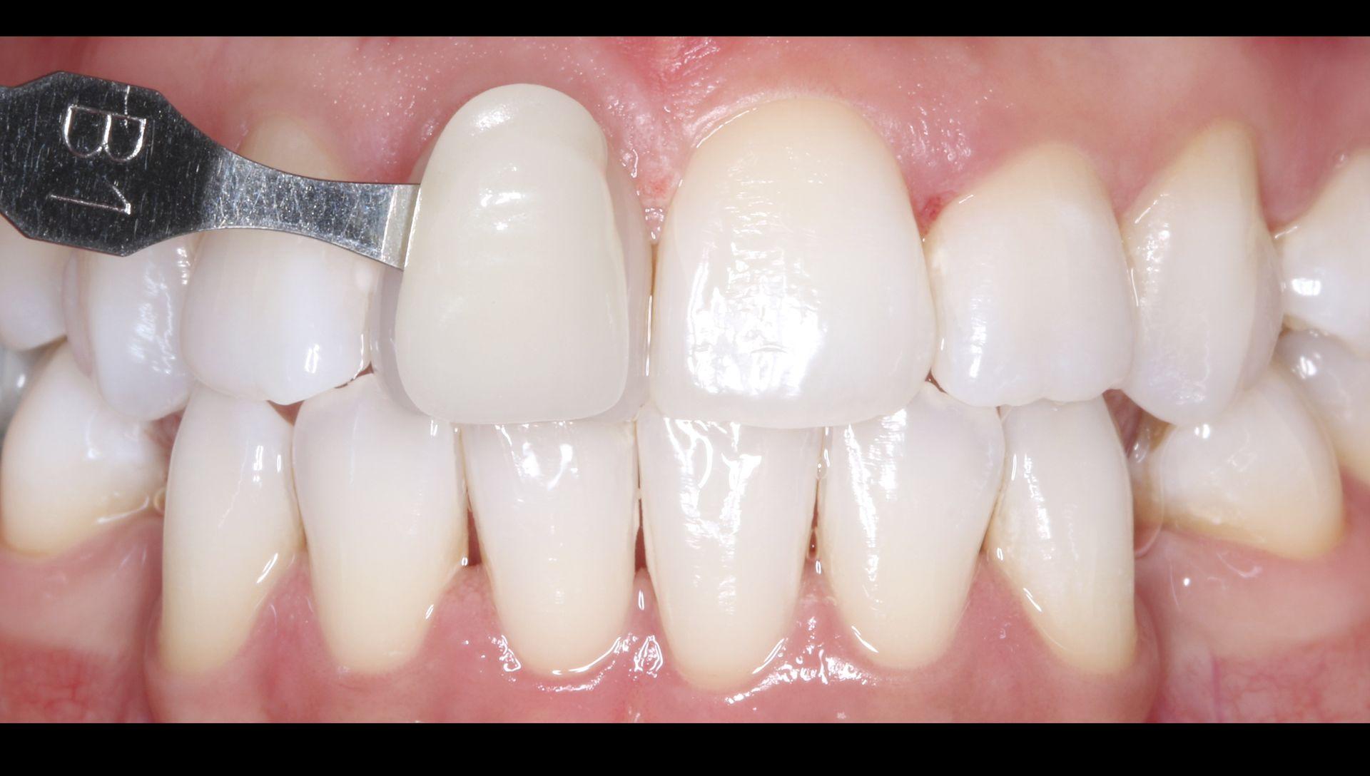 Després del tractament de blanquejament dental