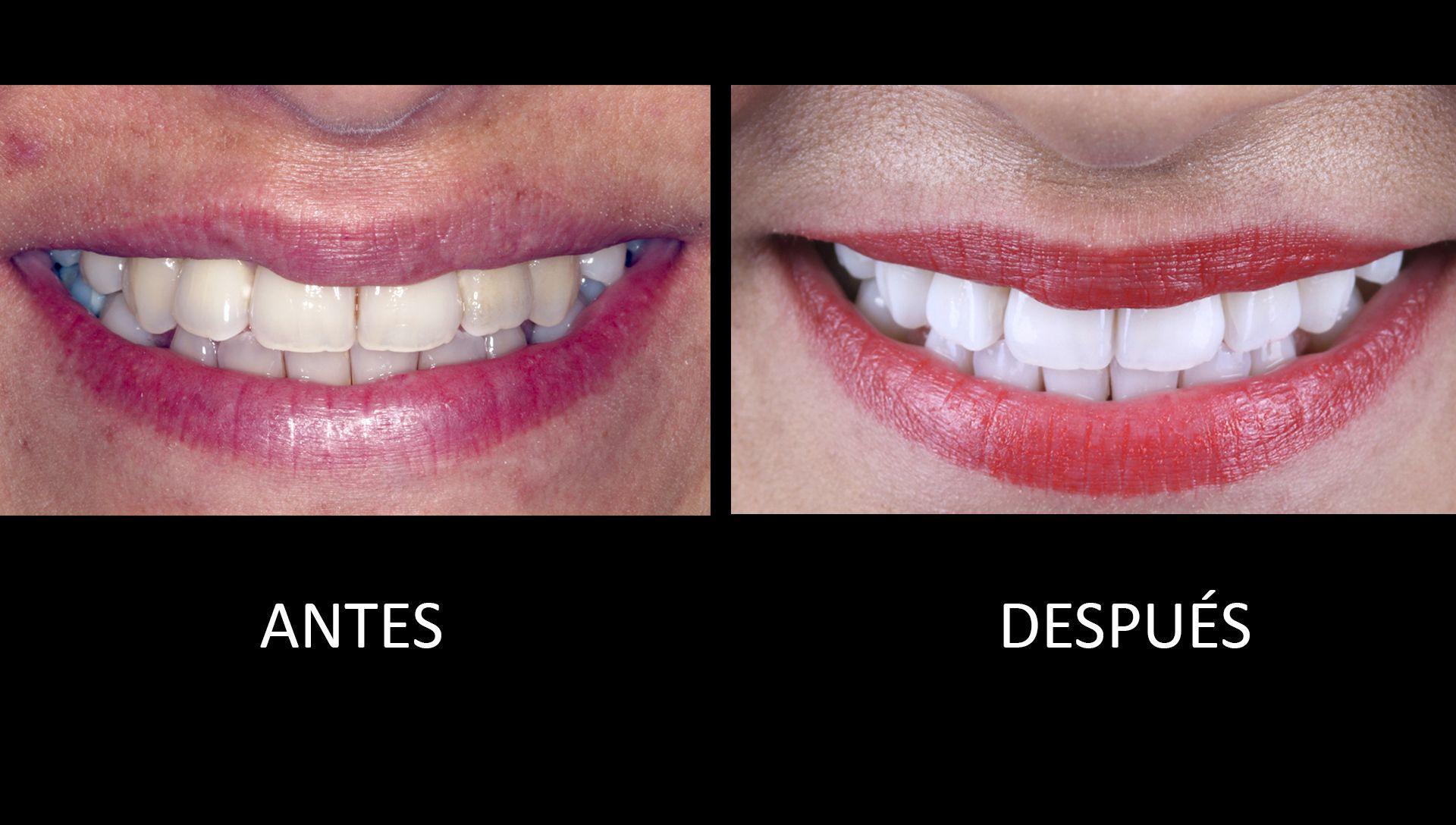 Abans i després del tractament de blanquejament dental