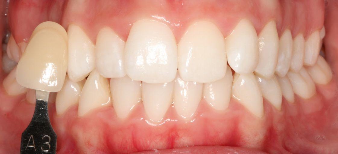 Després de tractament d'estètica emblanquiment dental. Clínica dental Padrós, dentista a Barcelona