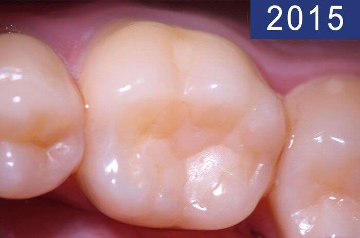 Empastament dental 18 anys més tard, realitzat en l'any 1997 a la Clínica Dental Padrós en un tractament de càries dental