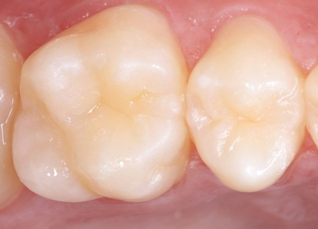 Després del reemplaçament d'un empastament dental defectuós per un nou estratificat de llarga durada. La reconstrucció resulta gairebé imperceptible.