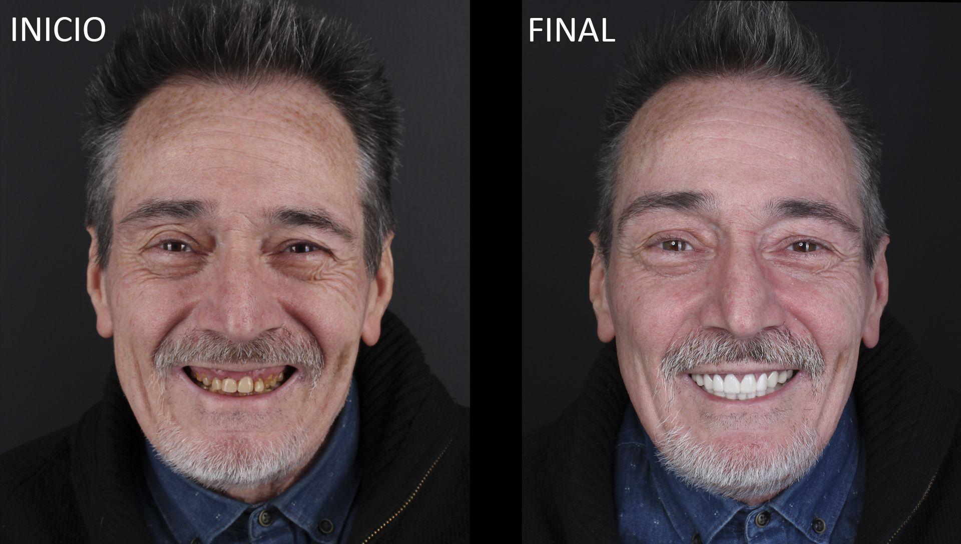 Joaquín abans i després del tractament d'estètica dental