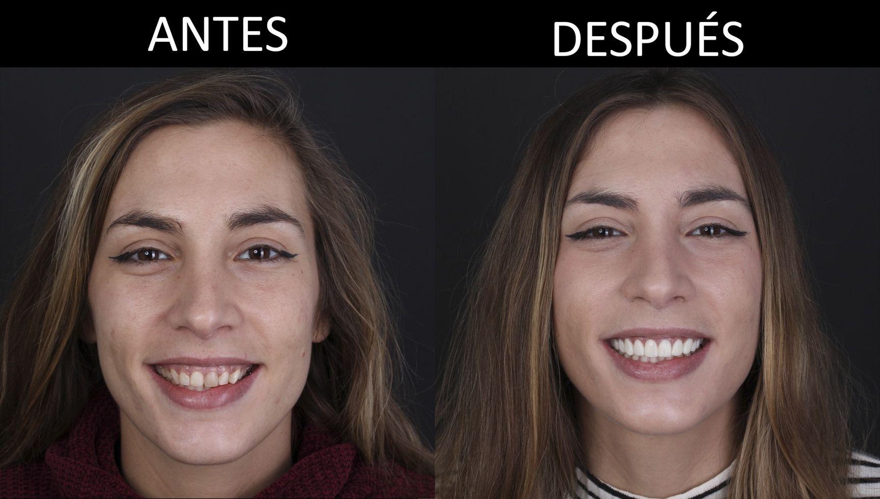 Abans i després del tractament d'estètica dental