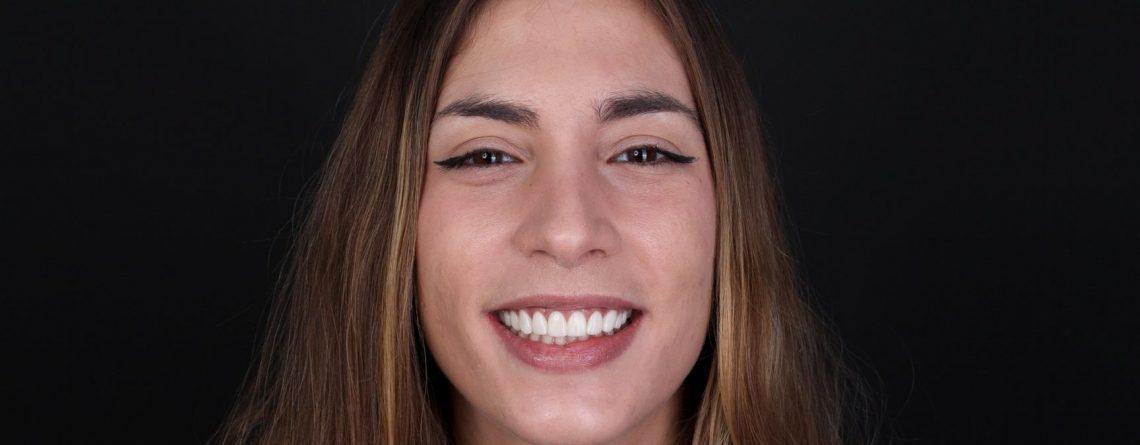 Cas dental Laura: tractament d'estètica dental