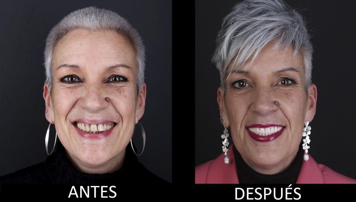 Abans i després del tractament d'implants dentals