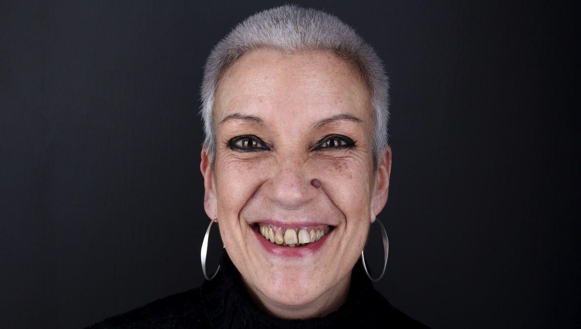 Abans del tractament d'implants dentals