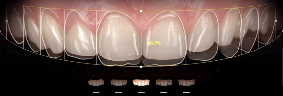Aplicacions com Smile Cloud, Ivosmile, DSDapp o Snap Dental ens ajuden en el càlcul de proporcions, elecció de la forma, color i posició de les dents en la seva nova somriure i ens permeten dur a terme simulacions digitals per ajudar-nos a escollir el teu nou somriure.