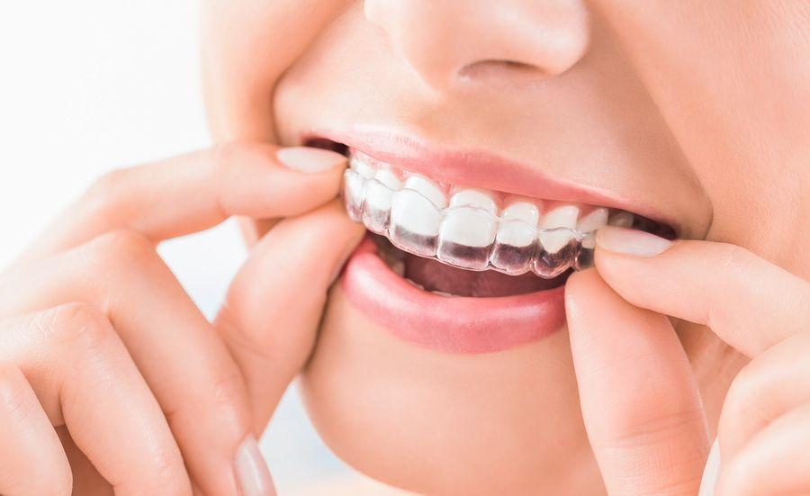 La clínica dental Padrós a Barcelona disposa del tractament d'ortodòncia invisible invisalign, aparells transparents i extraïbles