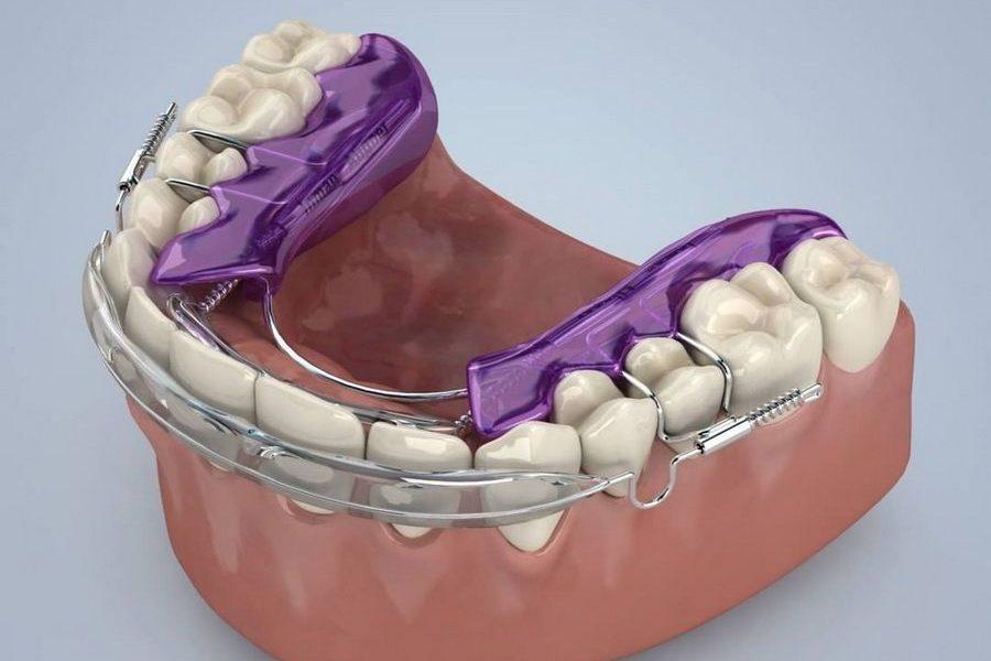 Disposem del tractament d'ortodòncia ràpida Inman Aligner en clínica dental Padrós, el teu dentista a Barcelona