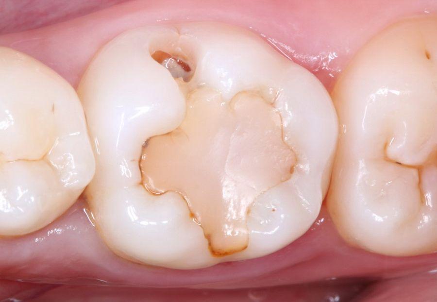 El Carisolv permet dissoldre de manera molt controlada i conservadora el teixit dental amb càries, respectant els teixits dentals sans