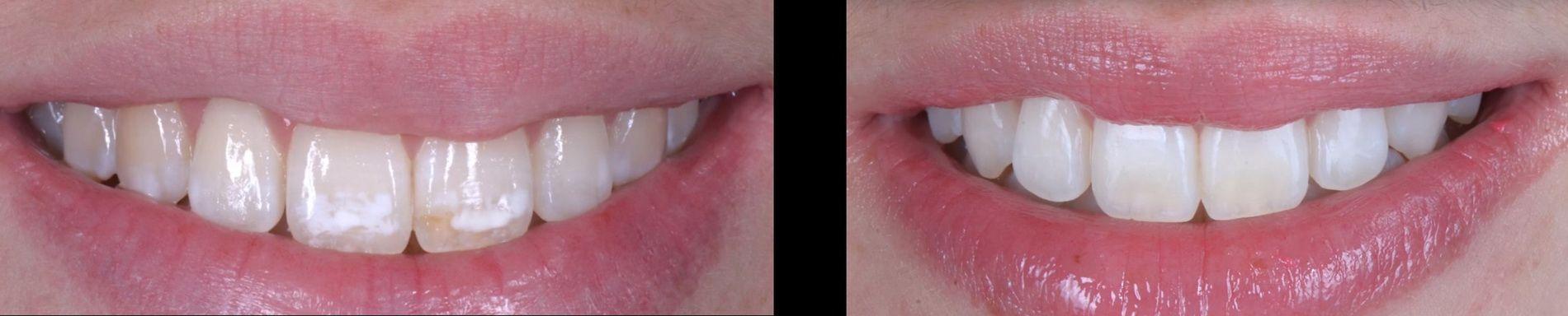 Els sistemes de microerosió-infiltració com Icon® o Opalustre® permeten eliminar o dissimular molt l'efecte antiestètic d'aquestes taques sense necessitat d'utilitzar turbines ni materials de recobriment, ni carilles. Clínica dental Padrós, dentista a Barcelona