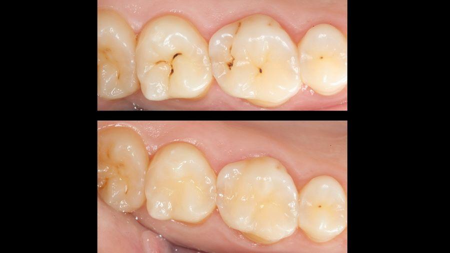 La microabrasió dental permet tractar càries de manera mínimament invasiva, sense molèsties, vibracions ni sons aguts