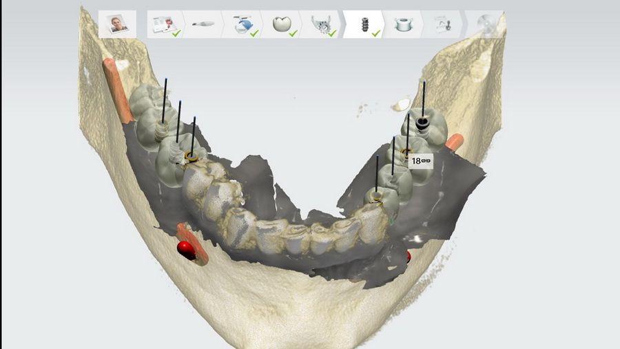 Clínica dental Padrós disposa del sistema de radiologia digital 3D Pointnix, amb captador de grans dimensions i alta resolució.