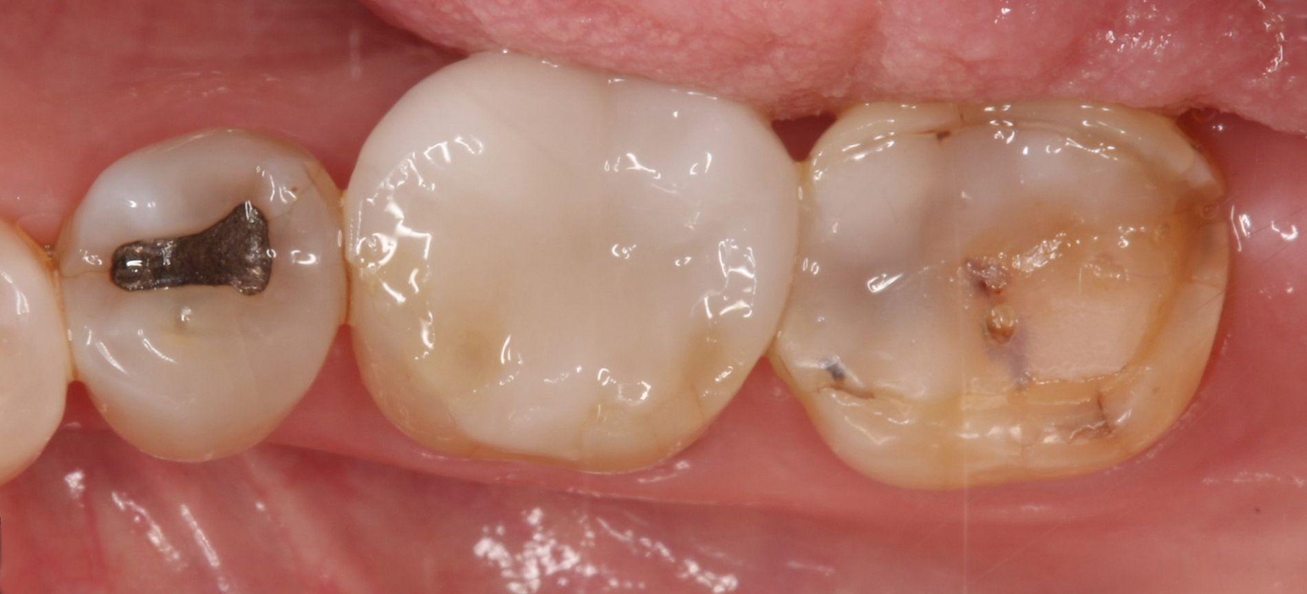 Cas de desgast dental tractat en la nostra clínica dental a Barcelona