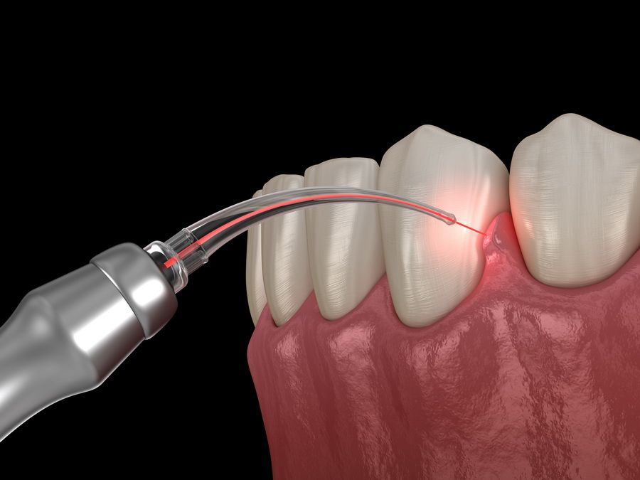 Tractament periodontal de les genives per a malalties com la gingivitis i la periodontitis a la clínica dental Padrós a Barcelona