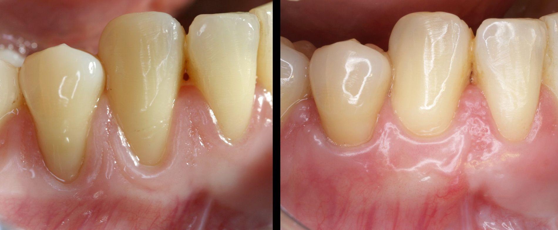 Tractament d'estètica de les genives retretes. Clínica dental Padrós, dentista a Barcelona