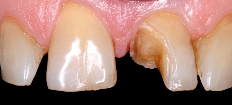 Abans del tractament amb el sistema CEREC 3D que incorpora tecnologia CAD-CAM