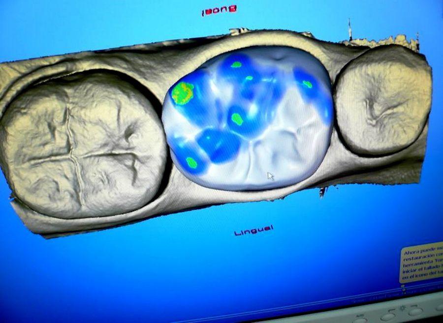 El sistema CEREC 3D de CAD-CAM dental permet confeccionar restauracions dentals amb una precisió d'ajust de 30 micres.