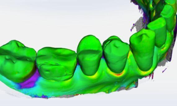 Reproducció digital obtinguda mitjançant el nou escànner intraoral PrimeScan