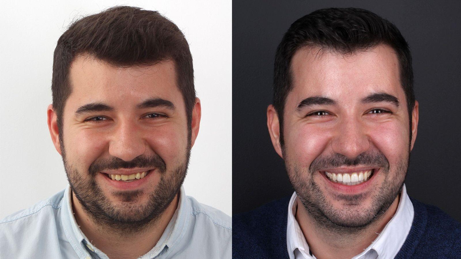 Abans y després del tractament de carilles de porcellana