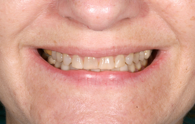 Abans del tractament de carilles de porcellana