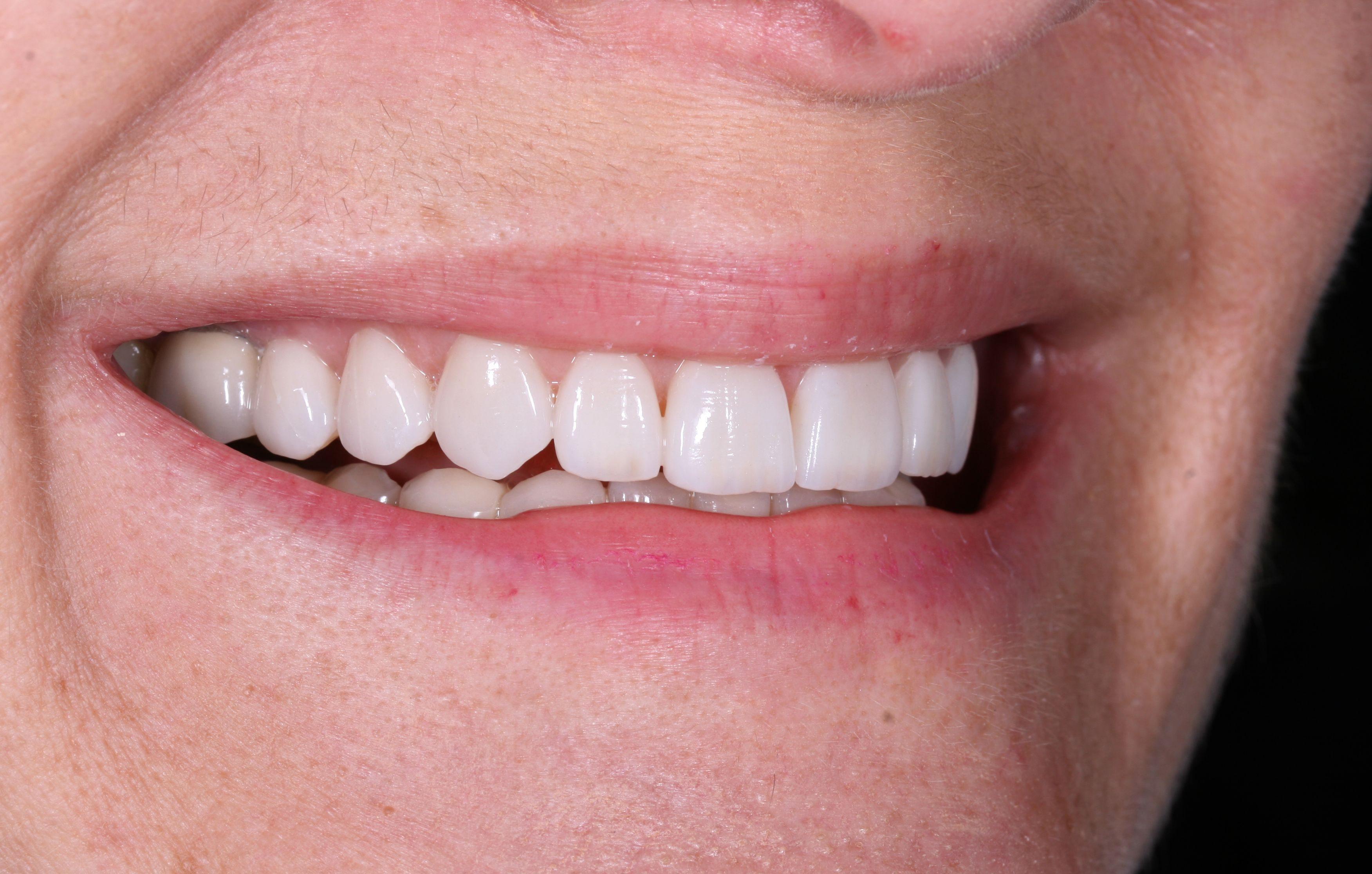 Resultat final després del tractament de carilles de porcellana