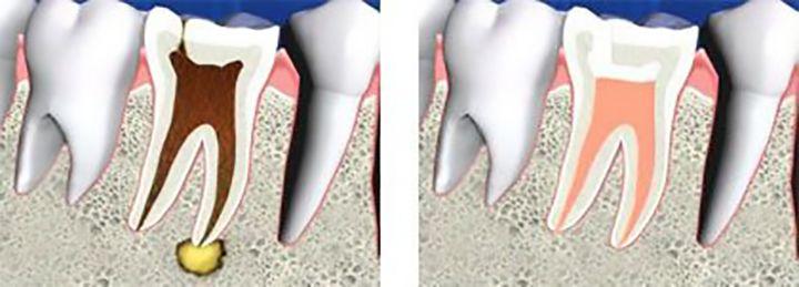 Vista interna dels dents abans i després del tractament d'endodòncia
